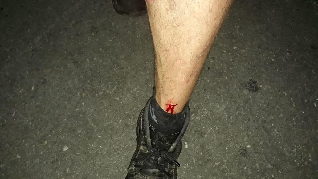 Imagem de destaque Lâmpada quebrada -  Mais um gari se machuca com lixo descartado de forma errada
